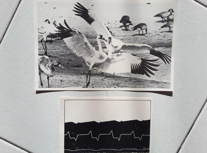 first human electrocardiogram, 1887